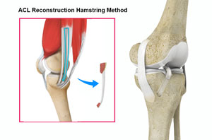 ACL Reconstruction Hamstring Tendo