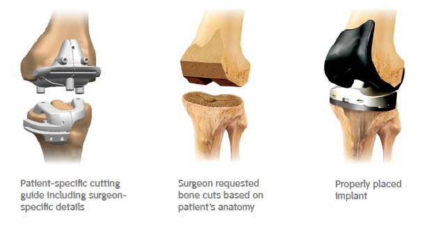Patient-specific cutting guides